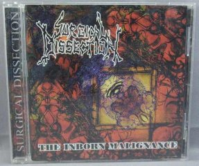 Surgical Dissection - Inborn Malignance CD Slovakia